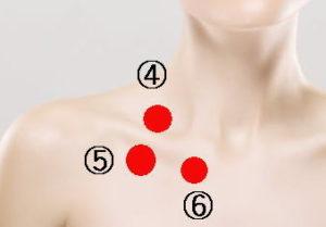 肋鎖症候群の場合の治療法