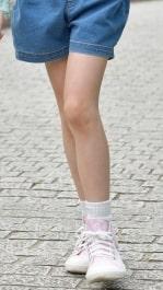 思春期より見ら れる膝のひねり